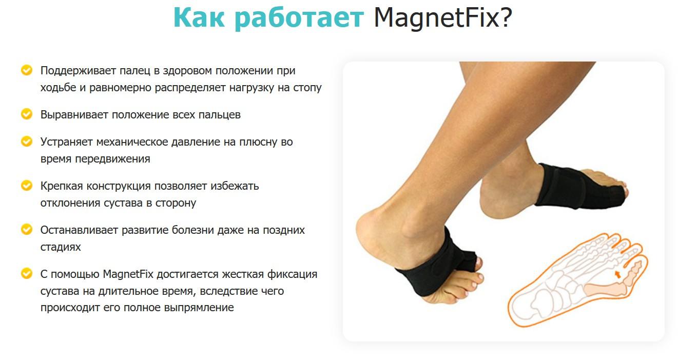 Магнитная вальгусная шина MagnetFix